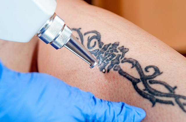 Best of The Tattoo Removal Methods Based on Tattoo Color